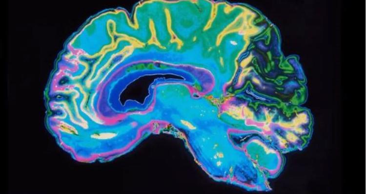 Crecerá exponencialmente mal Parkinson en México